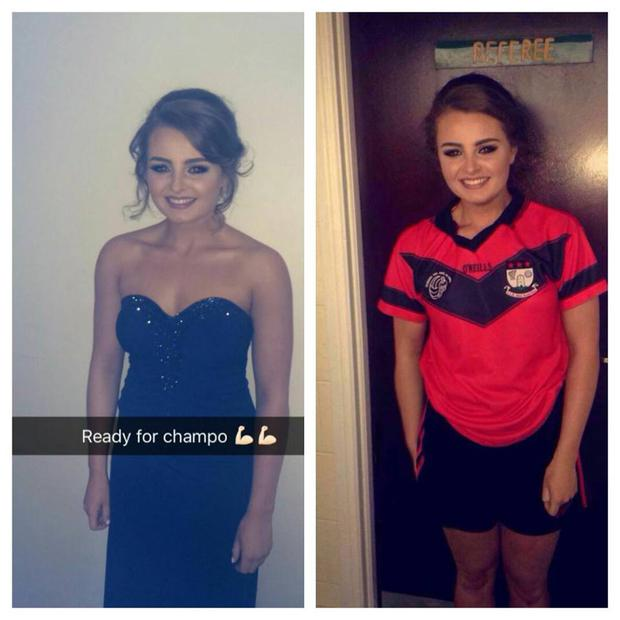Emma Finlay in her ball gown and her GAA gear