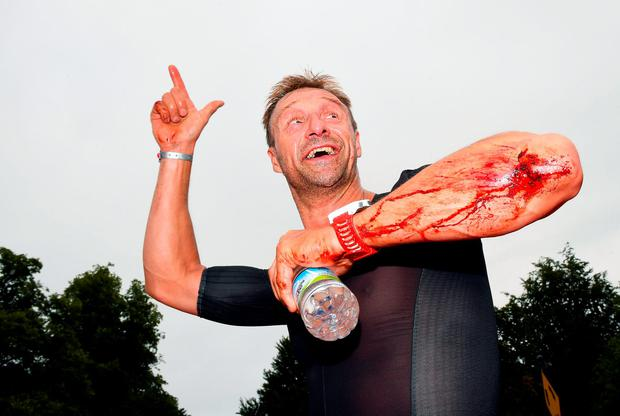 A bloodied competitor smiles as he completes the Ironman 70.3 triathlon. Photo: Charles McQuillan/Getty Images