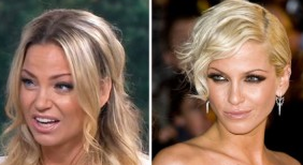 Sarah Harding's appearance on This Morning has prompted plastic surgery rumours. Photo: ITV / This Morning