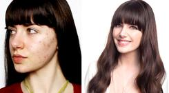 Melanie battled with cystic acne from age 16