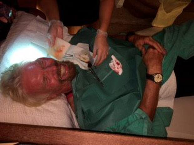 Pic shows: Richard Branson injuries after a bicycle accident