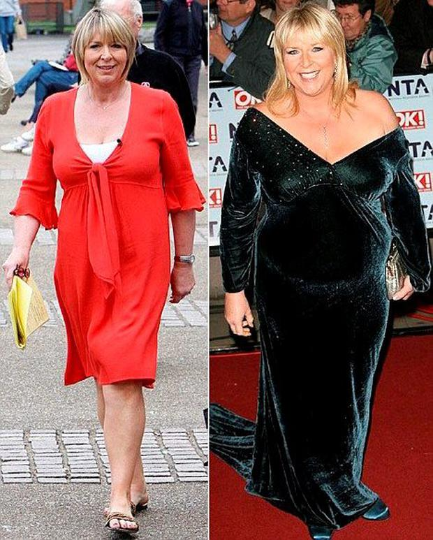TREND: TV presenter Fern Britton turned to gastric surgery to aid weight loss. Photos: Jack Ludlam