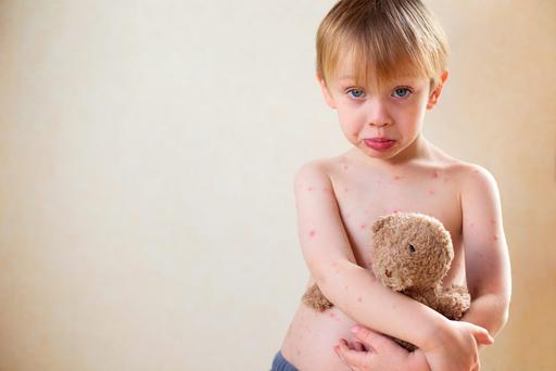 A child may feel unwell for days before a chickenpox rash appears