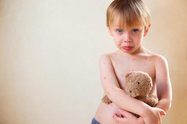ee844a20a 15 things to know about chickenpox - Independent.ie