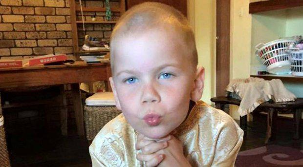 Oshin Kizsko was diagnosed with medulloblastoma last December and underwent surgery for it Facebook