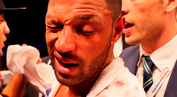 A battered Kell Brook who was taken to hospital with a broken eye socket Photo: Richard Heathcote/Getty Images