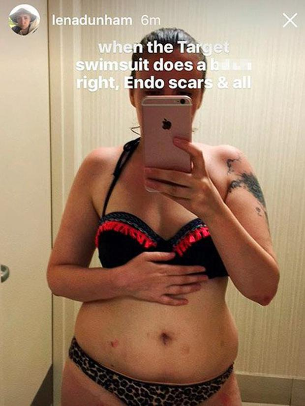 Lena Dunham posted this bikini selfie on Instagram