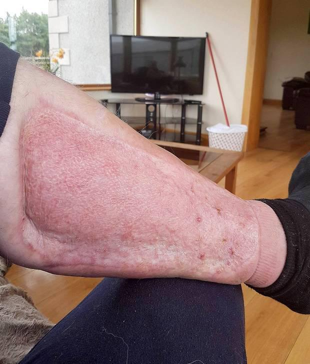 'There is no exact reason as to why Colin was infected by the bacteria. Doctors think it could have been present in his leg for a week before he was rushed to hospital'