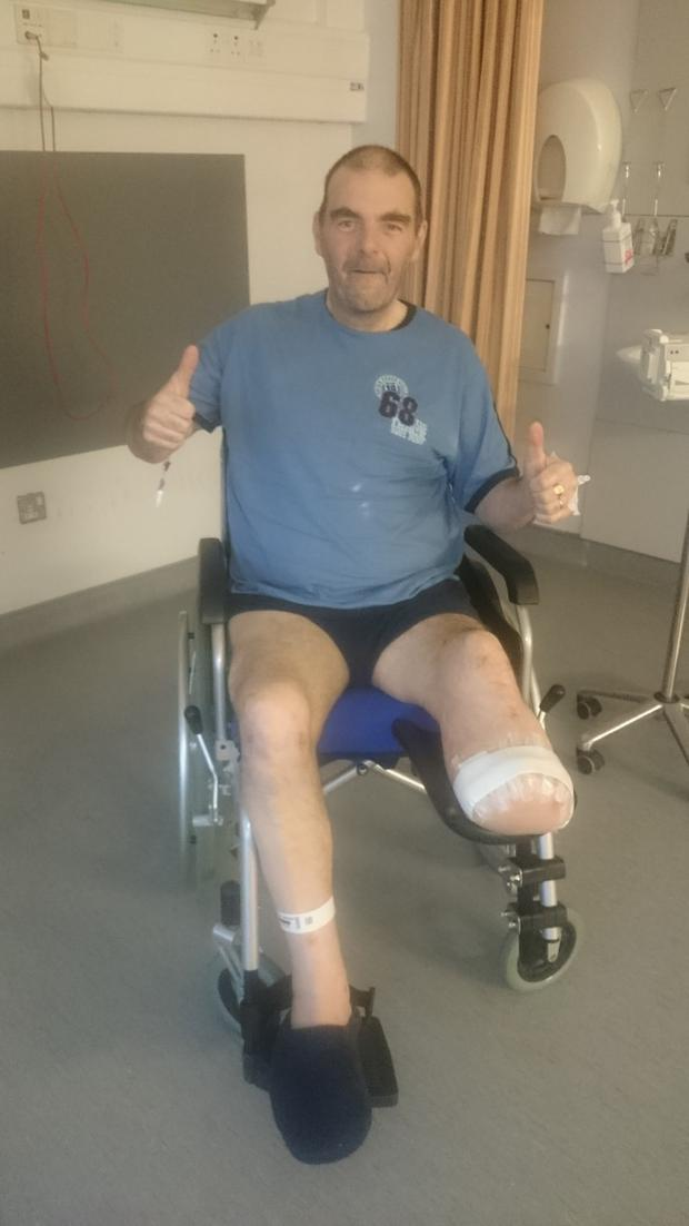 Paul Kenny lost his lower leg due to complications from Type 2 diabetes
