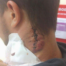 Bartosz Milewski needed 13 stitches after being stabbed in the neck (Bartosz Milewski )