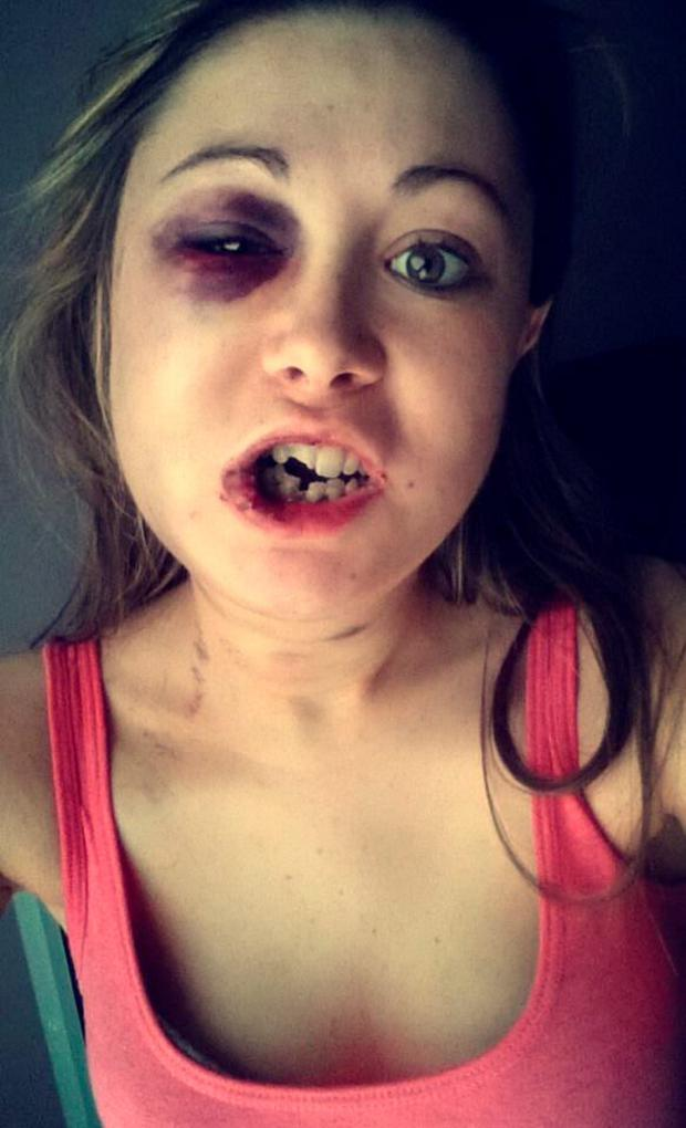 Stephanie Littlewood posted images of her injuries