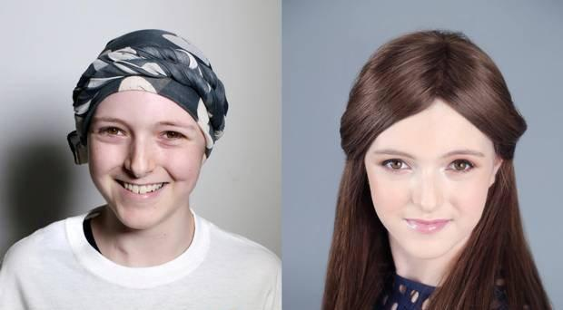 Megan before and after a makeover during treatment