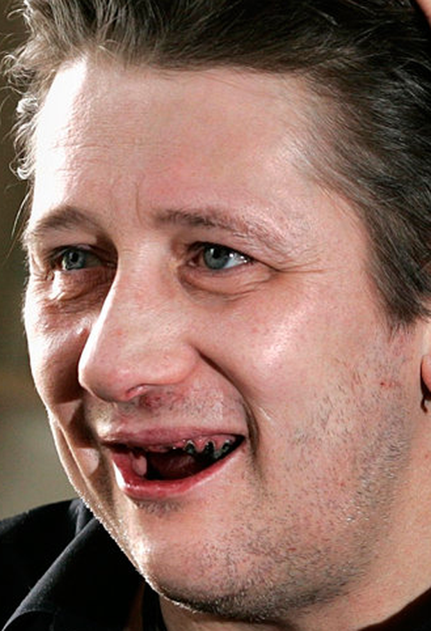 Victoria Mary's partner Shane MacGowan before his extensive dental work Photo: Gerry Mooney