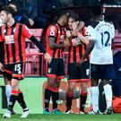Bournemouth's Harry Arter holds his face after the incident