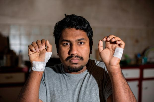 Alokh Thomas who was attacked in agravated burglary in Celbridge County Kildare. Pic:Mark Condren