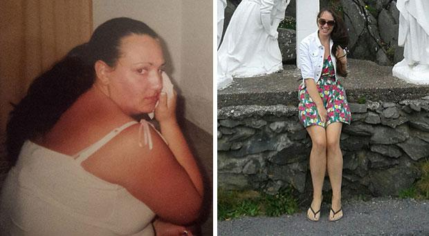 Audrey underwent gastric band surgery in 2008 and had maintained her nine stone weight loss for the past five years