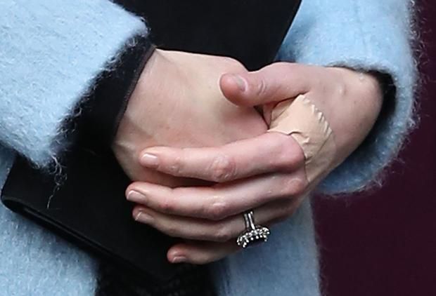 A plaster on the hand of the Duchess of Cambridge as she leaves the Nelson Trust Women's Centre in Gloucester after a visit as part of her ongoing work on addiction and mental health. Picture date: Friday November 4, 2016. Photo credit: Andrew Matthews/PA Wire