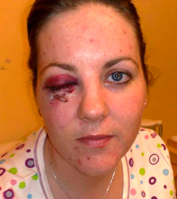 Garda Helena Power suffered a fractured eye socket in the attack Photo: Garda Review magazine