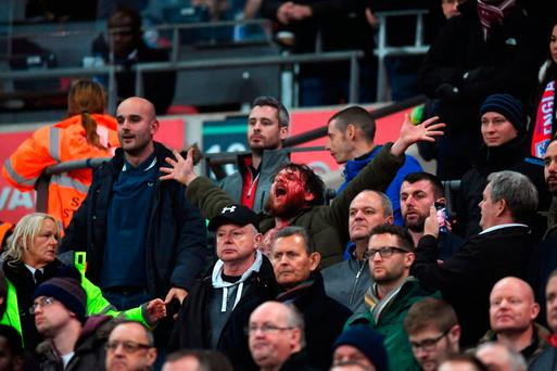 A bloody fan sings from the stand during the FIFA 2018 World Cup qualifying match between England and Scotland at Wembley