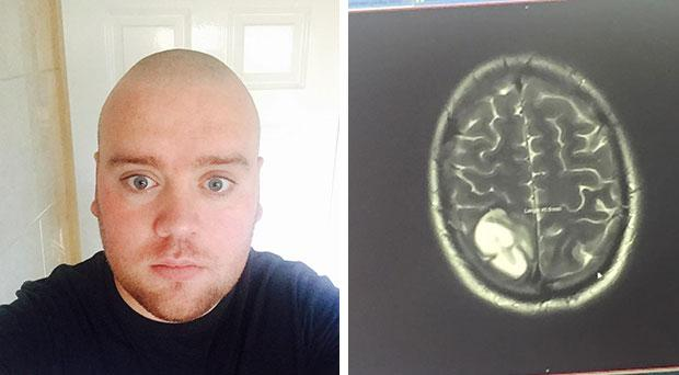 An image of a scan showing James' brain tumour Photo Credit: A Sense of Tumour