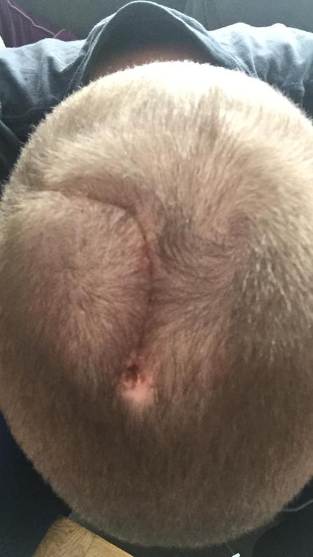 James said he's been relatively unscathed apart from a large scar on his scalp. Photo Credit: A Sense of Tumour