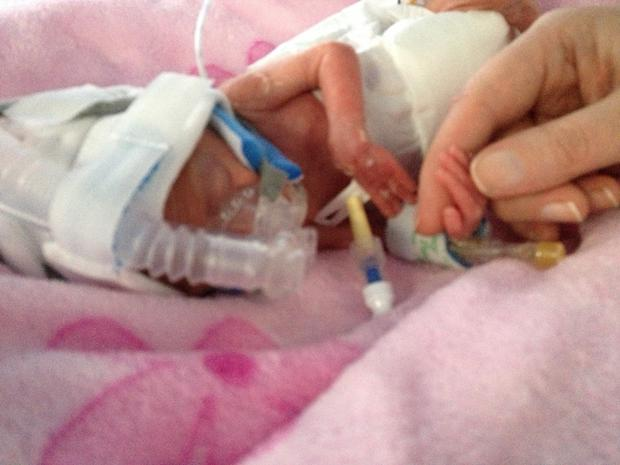 Ailbhe was delivered at 23 weeks and six days and weighed just 440g