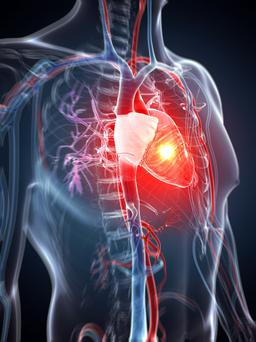 Ireland's death rate from heart attacks, cancer and pneumonia is above the EU average. Stock Image: GETTY