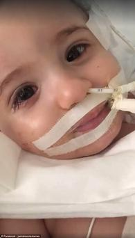 Baby Marwa opens her eyes after spending months in a coma