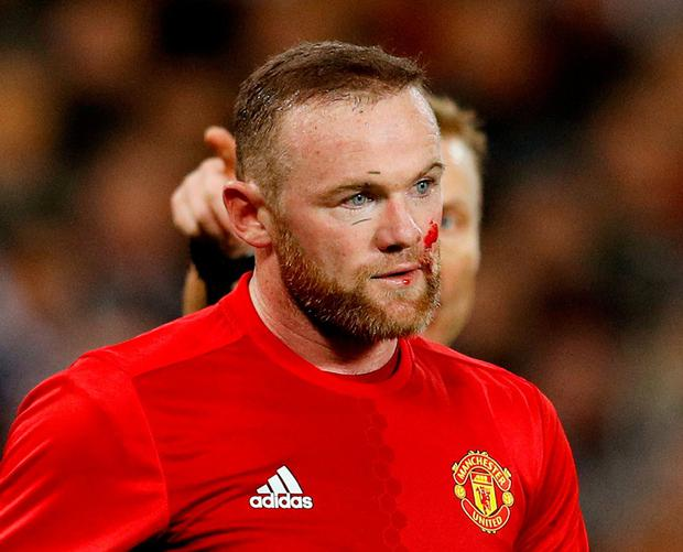 Blood on the face of Manchester United's Wayne Rooney after sustaining an injury. Photo: Phil Noble/Reuters