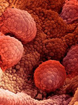 Laboratory experiments have hinted that blasting tumours with high levels of testosterone can suppress or even kill prostate cancer cells. GETTY