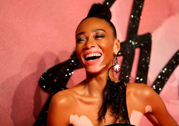 Canadian model Winnie Harlow poses for pictures on the red carpet upon arrival to attend the British Fashion Awards 2016 in London
