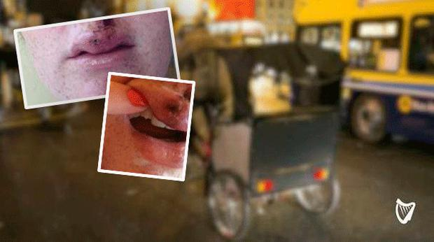 Inset: The injuries sustained by passengers involved in incidents on rickshaws