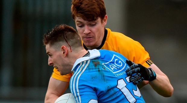 A bloodied Paul Hudson of Dublin in action against Kevin Feely of DCU during the Bord na Mona O'Byrne Cup Group 1 Round 1 match between Dublin and DCU Dochas Eireann at Parnell Park in Dublin. Photo by Cody Glenn/Sportsfile