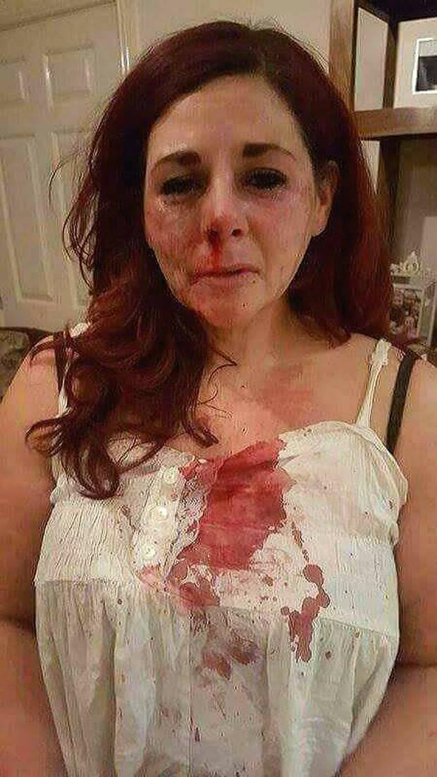 Vicki pictured after the incident