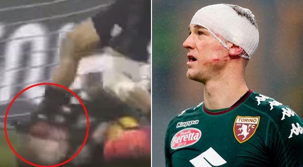 Ouch: Joe Hart left battered and bruised by the studs of an opponent