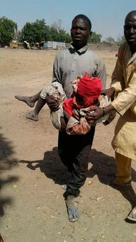An injured child is carried at the site after a bombing attack of an internally displaced persons camp in Rann, Nigeria January 17, 2017. MSF/Handout via Reuters.
