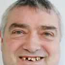 Patrick Naughton before his teeth transformation at 3Dental