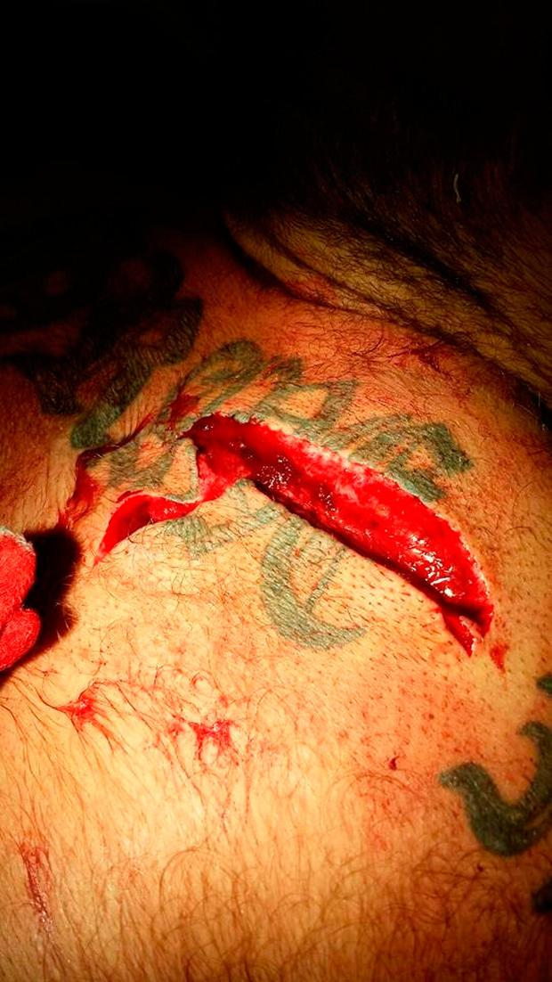 One of his stab wounds.