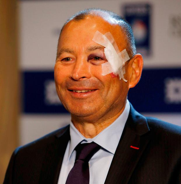 Battered and bruised - England head coach Eddie Jones. Photo: Paul Childs/Action Images via Reuters