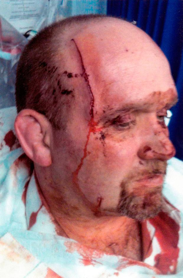 Sergeant Mark Wright sffured serious injuries. Picture: PSNI/PA Wire