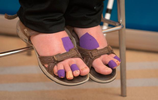 Plasters cover the blisters on her feet Photo: Gareth Chaney/Collins