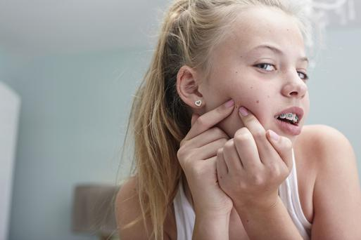 Squeezing spots also increases the risk of scarring which may be permanent.