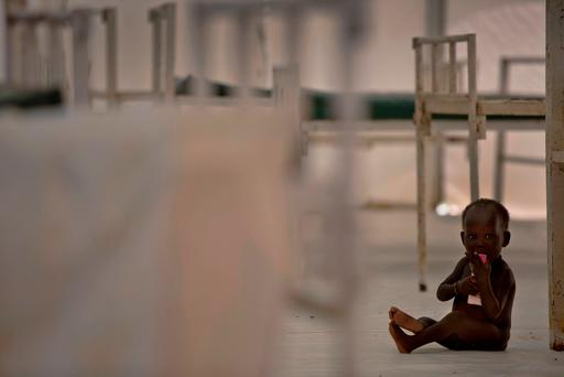 In this photo taken Sunday, Oct. 23, 2016 and released by UNICEF, a young child sits on the floor in the therapeutic feeding unit of the Medecins Sans Frontieres (Doctors Without Borders) hospital in the UN Protection of Civilians Camp in Bentiu, South Sudan.. (Kate Holt/UNICEF via AP)
