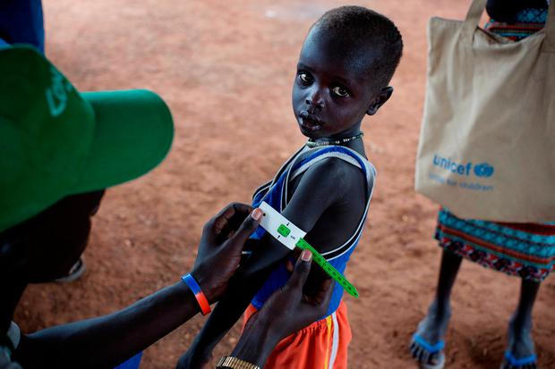 In this photo taken Thursday, Oct. 20, 2016 and released by UNICEF, a boy has his arm measured to see if he is suffering from malnutrition during a nutritional assessment at an emergency medical facility supported by UNICEF in Kuach, on the road to Leer, in South Sudan. (Kate Holt/UNICEF via AP)