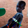 A boy is tested for malnutrition at an emergency medical facility in Kuach, South Sudan Photo: Kate Holt/UNICEF via AP