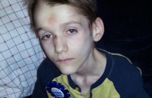 Alexandru (15) died after suffering for years due to untreated diabetes and starvation