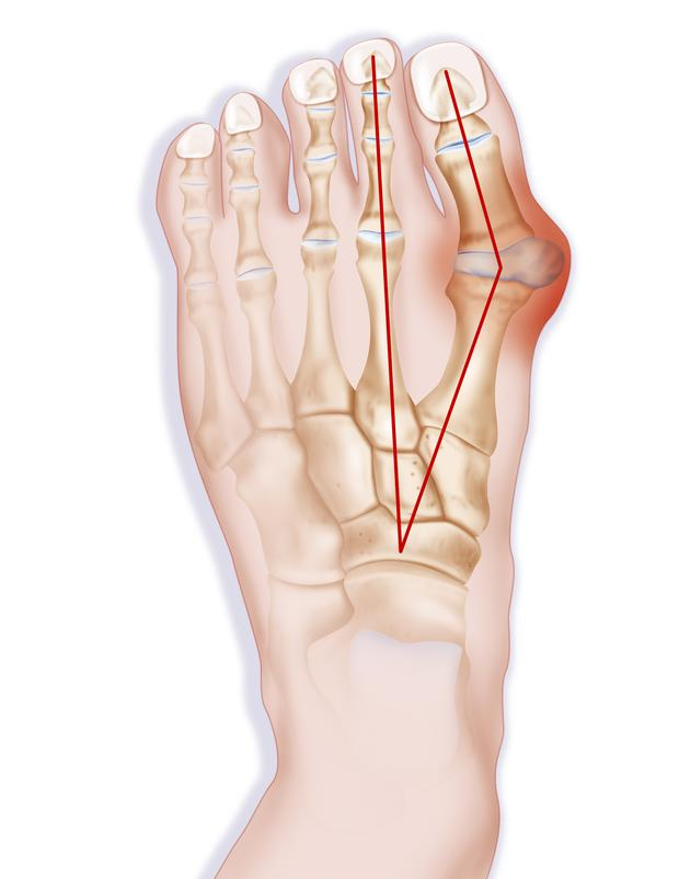 a bunion occurs when the base of the large toe moves away from the other  joints