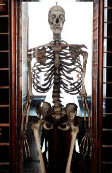 The skeleton of Cornelius Magrath in Trinity College Photo: Paul Sharp