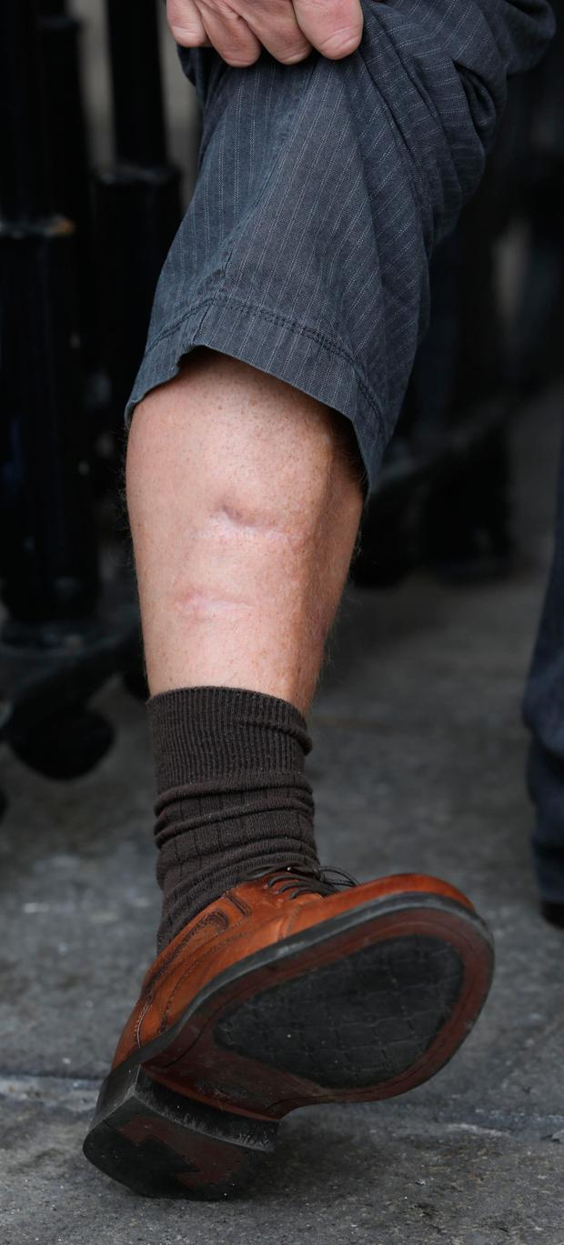 James McCreary pictured displaying the scars on his right leg. Pic: Collins Courts