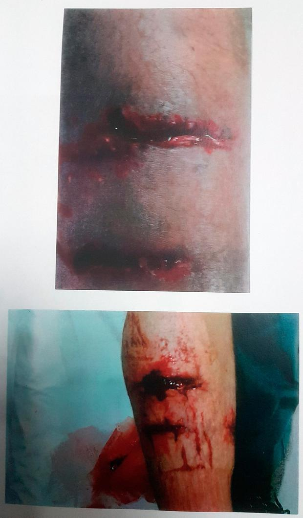 The horrific wounds Mr McCreary suffered in the attack by a German Shepherd dog. Photo: Collins Courts